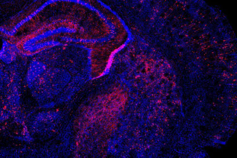 Researchers applied the Perturb-Seq method to the developing mouse brain by introducing multiple genetic changes to cells (in red) and measuring how gene expression changed in individual cells.