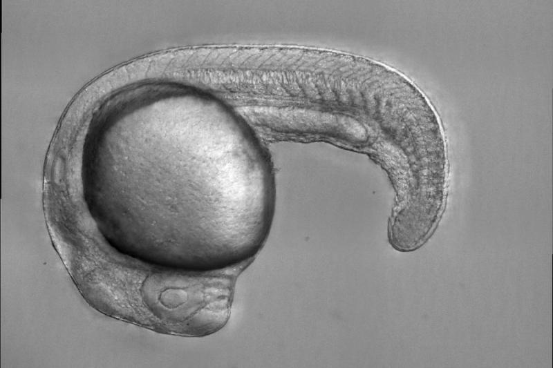 Zebrafish embryo that models anemia, with a defective transcription factor protein that leads to an inability to produce red blood cells.